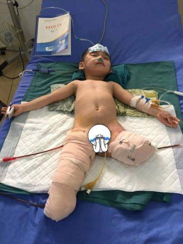 Sau khi phẫu thuật, cháu Phúc phải cắt toàn bộ 2 chân.