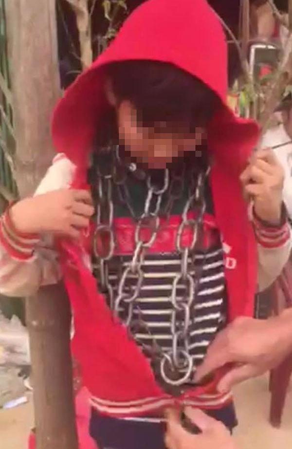 bé trai bị xích nhiều vòng quanh cổ tại thanh hóa