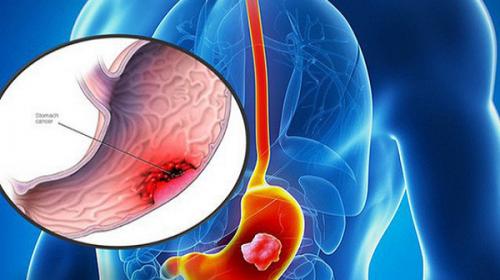 Nguyên nhân gây bệnh ung thư dạ dày là do đâu?