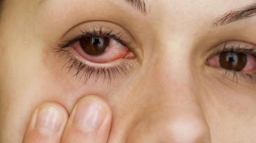 Bệnh đau mắt đỏ do nhiều nguyên nhân gây nên