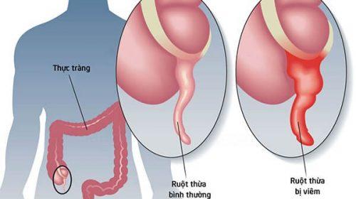 Triệu chứng đau ruột thừa rõ rệt không nên bỏ qua