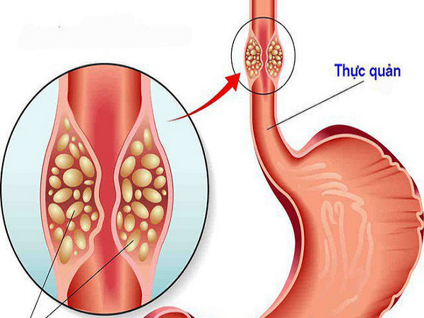 Yếu tố gây bệnh ung thư thực quản, dấu hiệu nhận biết
